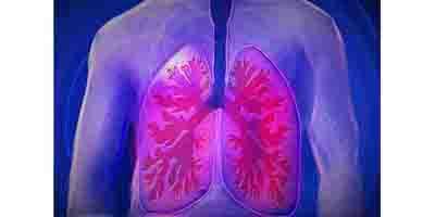Sauna and asthma